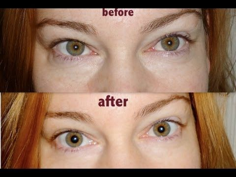 GET RID OF PUFFY EYES for under $3 #PregnancyStretchMarks