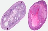 Tipos de cáncer de ovario - Tipos de cáncer de ovario Cuando hablamos de cáncer de ovario se pueden distinguir diversos tipos de tumores. A continuación se relacionan algunos de los más comunes: Tumores epiteliales Constituyen la mayor parte de los tumores de ovario, hasta el 75% (incluyendo benignos y malignos) y el 90% de los malignos. Esta definición incluye un conjunto de tumores derivados del epitelio del ovario (tejido que lo cubre), y los más comunes son: Serosos (60-80%)…