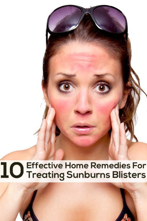 Top 10 Effective Home Remedies For Treating Sunburn Blisters