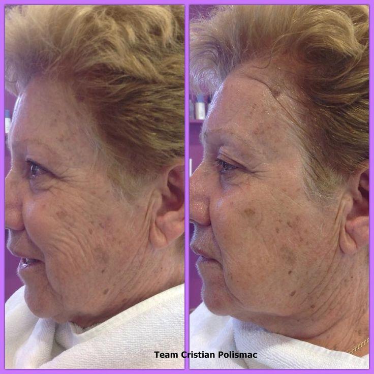 Μηχάνημα αντιγήρανσης της Vegas . Στην εικόνα βλέπετε τα αποτελέσματα από την πρώτη θεραπεία ! www.vegasbeauty.gr