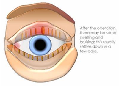 eye cysts- I & C 4