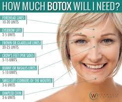 botox injection sites diagram ile ilgili görsel sonucu