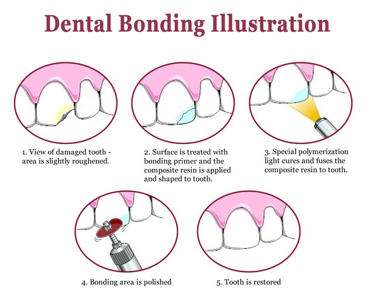 What are Dental Bonding used for? Dental Bonding is used to reshape your teeth. It is done using composite resin.
