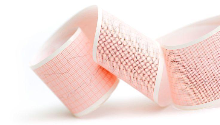 Algorithm beats experts at diagnosing heart rhythm - Futurity http://www.futurity.org/algorithm-heart-rhythm-1480352-2/?utm_campaign=crowdfire&utm_content=crowdfire&utm_medium=social&utm_source=pinterest