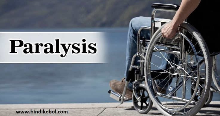 Paralysis or lakwa treatment in ayurveda in hindi, Ayurvedic Treatment For Paralysis In Hindi, Lakwa Ka Desi Ilaj