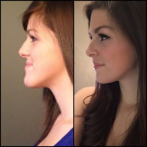 Cassie's Jaw Surgery Blog