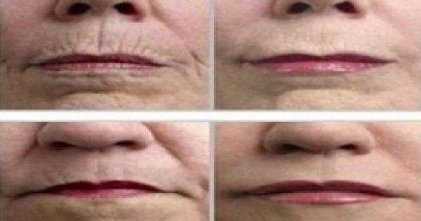 Τρίψτε το δέρμα σας με ΑΥΤΟ το μπαχαρικό και ΑΠΟΧΑΙΡΕΤΗΣΤΕ τις ρυτίδες #Υγεία