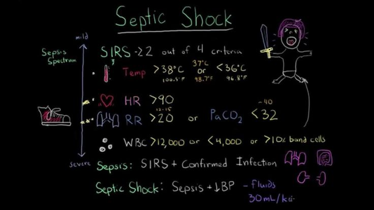 Sepsis: Systemic inflammatory response syndrome (SIRS) to multiple organ... KTCG CRITICALCARE