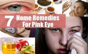 Pink Eye: How To Treat and Prevent Pink Eye (Conjunctivitis - Home Remedies 101
