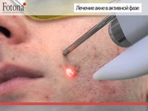 Лечение акне в клинике Когерент -  Лечение акне с помощью лазерной системы SP Dynamis, с помощью которой можно добиться уникального косметического и лечебного эффекта.  - #Russian