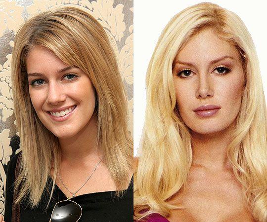 Celebrities With Plastic Surgery Heidi Montag Courteney: Best 25+ Heidi Montag Surgery Ideas On Pinterest