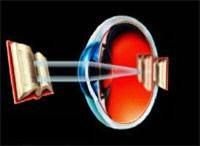 Hyperopia or Farsightedness is a condition in which the distance between the cornea and the retina is too short or the actual shape of the eye is too flat. This causes light images to focus behind the retina, causing blurred vision. http://arizonacataract.com/eye-problems/refractive-errors/hyperopia-farsightedness/