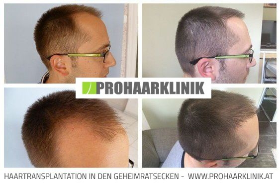 Haartransplantation