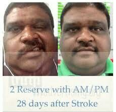Cure stroke with Reserve