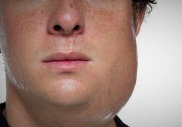 Mumps: Symptoms, Treatments, and Prevention