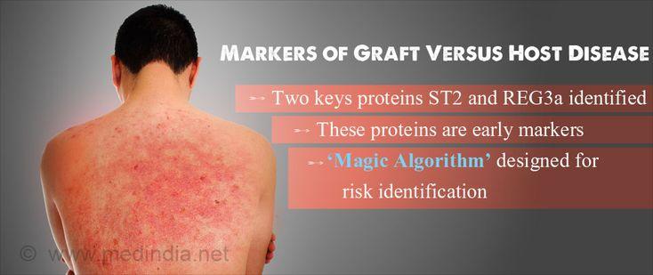 �Magic Algorithm� Designed to Identify Graft Versus Host Disease
