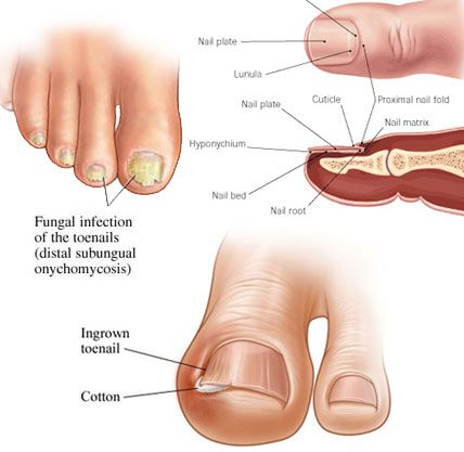 90 best Nail Fungus Treatment images on Pinterest | Fungi, Nail ...