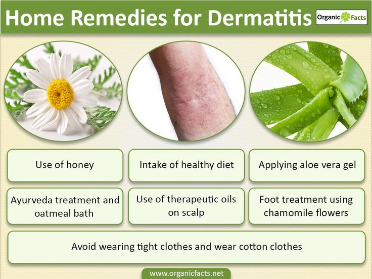 Home remedies for Dermatitis include regular skin cleansing; mixture of elm bark, oak bark, comfrey root; oil treatment by mixing vegetable oil and lavender oil; applying chamomile flower essence, having nutritious food along with using cotton clothing. Various home remedies may be employed to tackle this disease and cease the symptoms such as itching, crushed skin, grey or yellow scales around the ears, red and itchy rashes caused due to an irritant, along with others.
