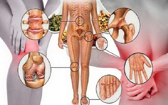 Συνταγή ενδυνάμωσης και αποκατάστασης οστών, γονάτων, αρθρώσεων θεραπεία και ανακούφιση από τον πόνο, που είναι εντελώς φυσική και την οποία μπορείτε να χρη