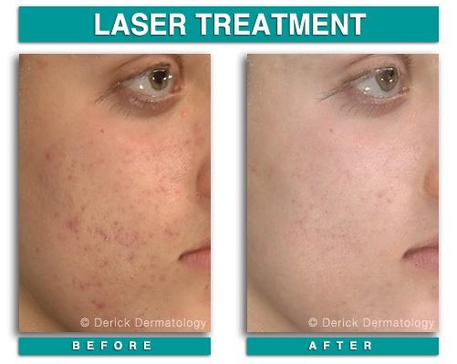 Acne Treatment Rhode Island