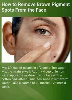 How To Remove Brown Pigment Spots From The Face! �