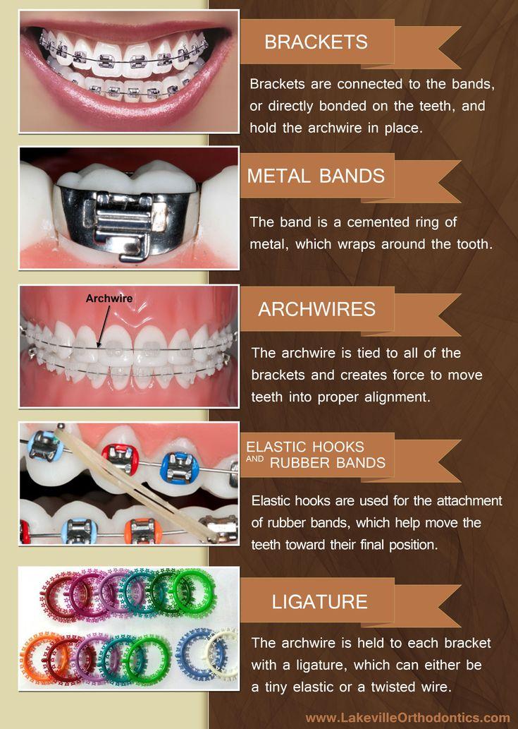 5 parts of braces