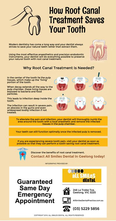 How Root Canal Treatment Saves Your Tooth allsmilesdentalpractice.com.au