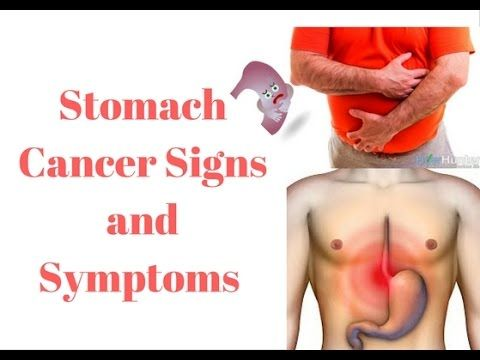 Stomach Cancer Signs and Symptoms with different part of stomach picture