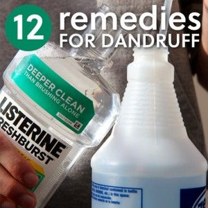 12 Natural Treatments to Stop Dandruff. If you are one of the many people who suffer from dandruff, I'm sure you will find these natural remedies beneficial and helpful.