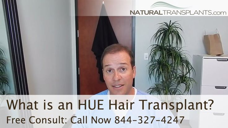 What is an HUE (High-Yield Unit Extraction) Hair Transplant? | Hair Restoration Boca Raton