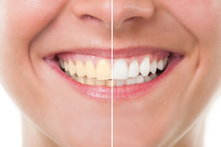 A Brief History of Tooth Whitening for Students at Dental Assistant School