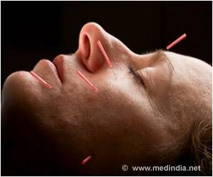 Acupuncture Benefits Bell's Palsy Patients