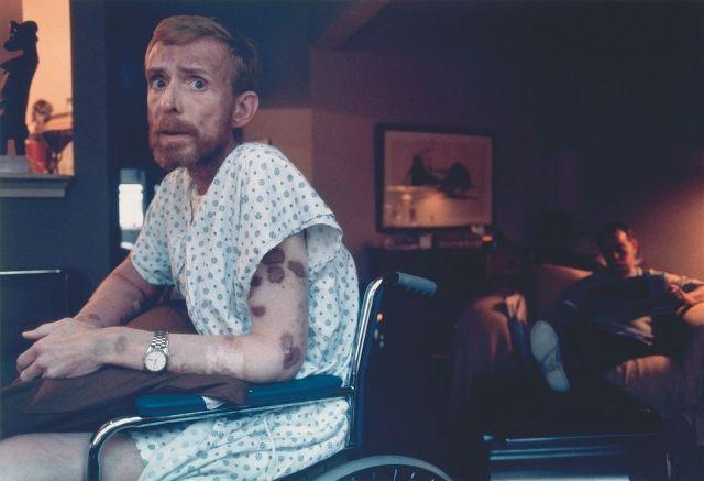 1986年 「AIDS (エイズ)」 車椅子に座るアメリカのエイズ患者Ken Meeks氏。彼の腕には、エイズ患者の末期に発症することで知られているカポジ肉腫が見られる。