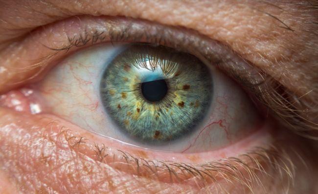 6 závažných diagnóz, ktoré sa prejavia cez vaše oči