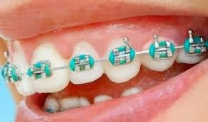 Teal braces bands