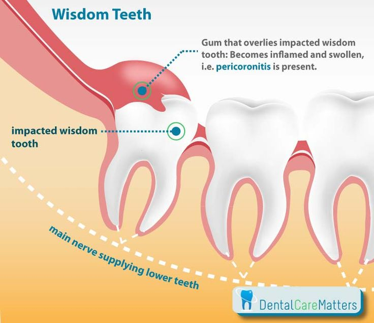 Periocoronitis- infection of the gum flap over partially erupted teeth. Most common reason wisdom teeth hurt.
