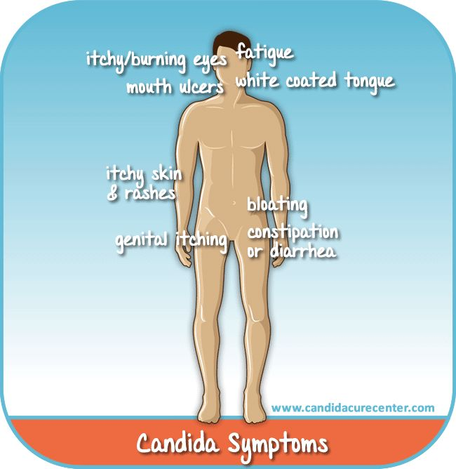There are about a dozen recognized causes of candida overgrowth and intestinal dysbiosis (or disfunction of the inner ecology)  from obvious chemical and germ exposure to mind-body related causes.
