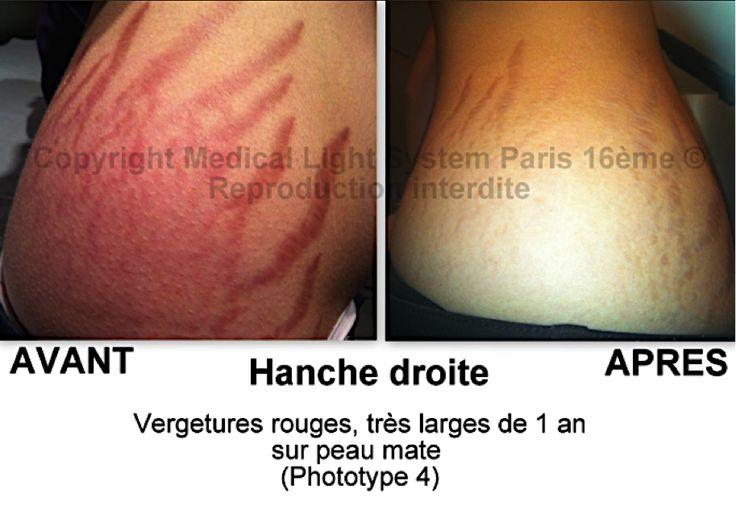 Vergetures rouges très large sur peau mate - Medical Light System Paris 16ème.