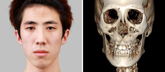 Korean Two Jaw Surgery