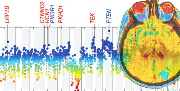 A team of researchers at the Herbert Irving Comprehensive Cancer Center at Columbia University Medical Center has identified 18 new genes responsible for driving #glioblastoma multiforme, the most common—and most aggressive—form of #braincancer in adults. The study was published August 5, 2013, in Nature Genetics. #GBM