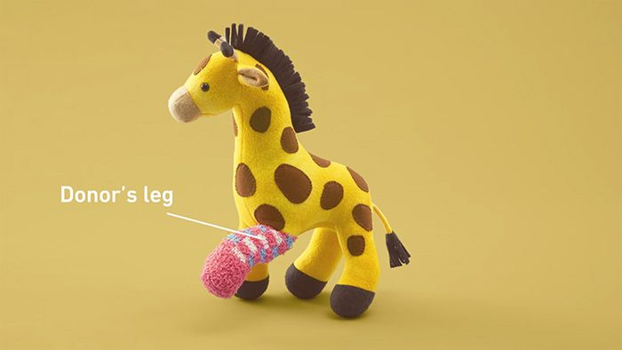 Old Toys Receive Donated Limbs To Educate Kids About Organ Transplants