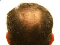 Balding and Heart Attack Risk