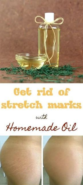 Get rid of stretch marks with homemade oil
