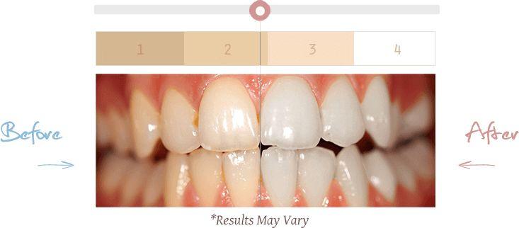 die besten 25 teeth whitening ideen auf pinterest nat rliches z hnereinigen wei e z hne. Black Bedroom Furniture Sets. Home Design Ideas