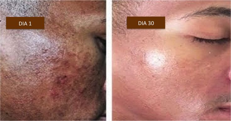 La hiperpigmentación es el oscurecimiento de la piel y es causado comúnmente por un alto nivel de melanina. La melanina da color a su pelo, piel y ojos.