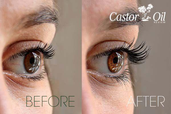 Castor Oil For Eyelashes How Castor Oil Grows Longer Lashes Castor Oil Eyelashes Castor Oil Lashes Castor Oil Eyelashes Before And After