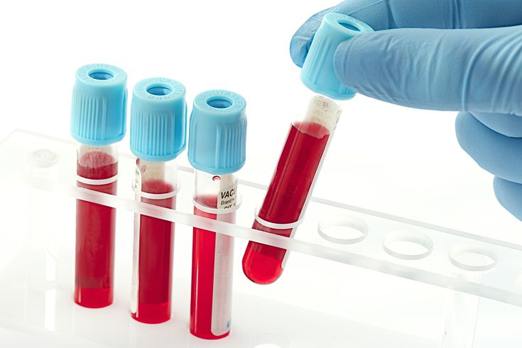 Read about VolitionRx's release of data on its NuQ blood test, showing assay was accurate to 86 percent in detecting untreated IPF cases in a patient trial.