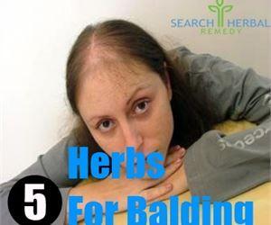 5 Herbs For Balding