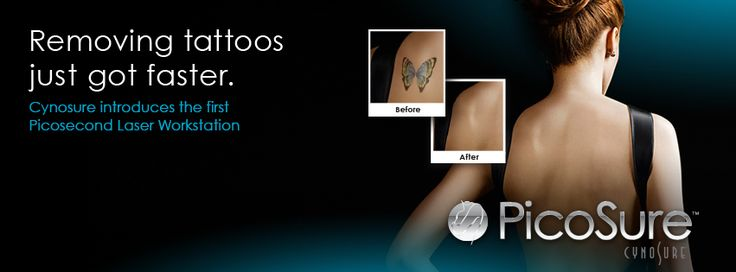 citytattooremoval.com  - Laser tattoo specialists will remove your unwanted tattoo, breaking up the ink with laser light so that the tattoo is re-absorbed by the bodies own waste system.