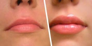 Con ESTOS trucos van a lucir unos labios carnosos en menos de un minuto